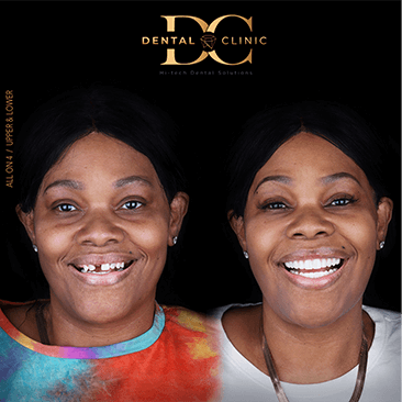 dental-clinic-cancun-before-and-after-all-on-4-crystal