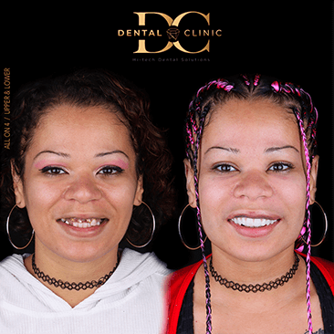 dental-clinic-cancun-before-and-after-all-on-4-deniss-gines