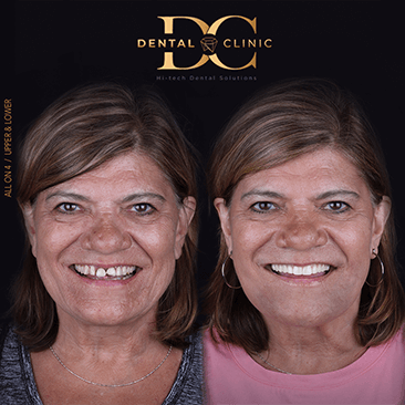 dental-clinic-cancun-before-and-after-all-on-4-dental-implants-nancy