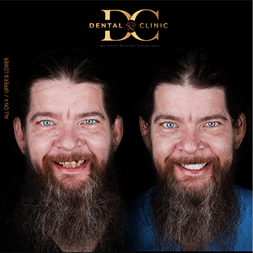 dental-clinic-cancun-before-and-after-all-on-4-gallagher