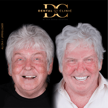 dental-clinic-cancun-before-and-after-all-on-4-george-bukins