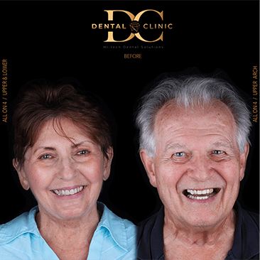 dental-clinic-cancun-before-and-after-all-on-4-jim-millie-mcgraw-after