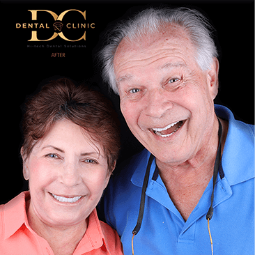 dental-clinic-cancun-before-and-after-all-on-4-jim-millie-mcgraw