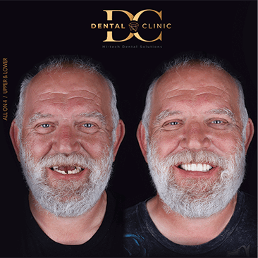 dental-clinic-cancun-before-and-after-all-on-4-martin-davidson