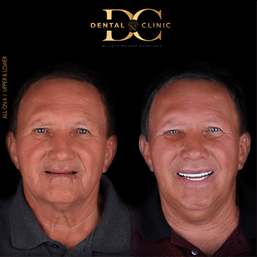 dental-clinic-cancun-before-and-after-all-on-4-robin