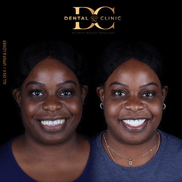dental-clinic-cancun-before-and-after-all-on-4-shakera