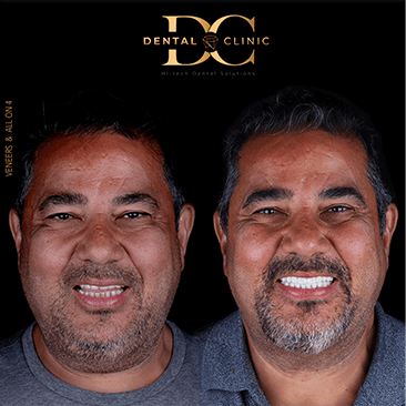 dental-clinic-cancun-before-and-after-all-on-4-veneers-ziad