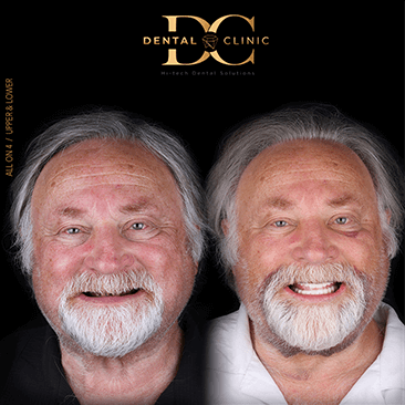 dental-clinic-cancun-before-and-after-all-on-4-william-carter