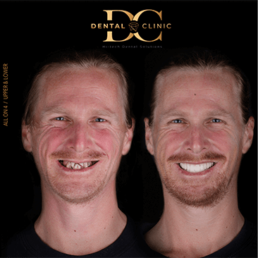 dental-clinic-cancun-before-and-after-all-on-4-zack