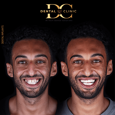 dental-clinic-cancun-before-and-after-dental-implants-ahmed