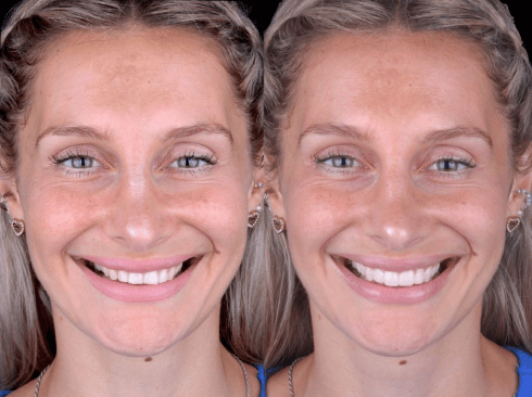 dental-clinic-cancun-before-and-after-natural-smile-dental-veneers-in-cancun