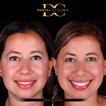 dental-clinic-cancun-before-and-after-porcelain-veneers