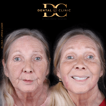 dental-clinic-cancun-before-and-after-veneers-and-all-on-4-audrey