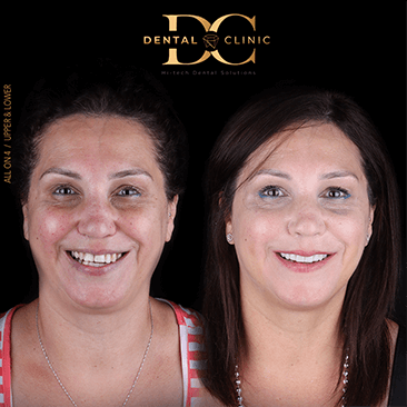 dental-clinic-cancun-before-and-after-all-on-4-kathy