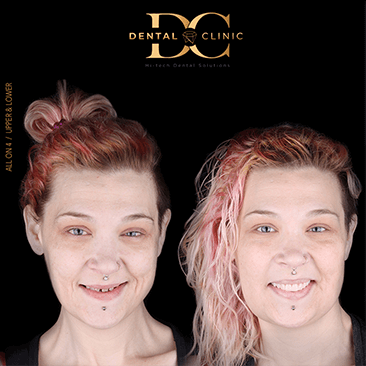 dental-clinic-cancun-before-and-after-all-on-4-lonni