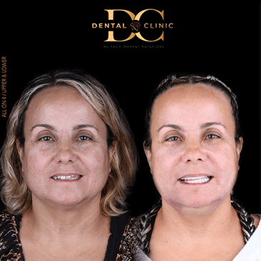 dental-clinic-cancun-before-and-after-all-on-4-maria-gamero