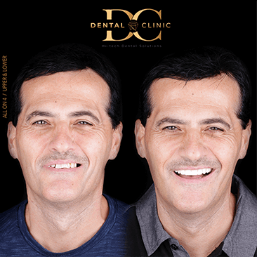 dental-clinic-cancun-before-and-after-all-on-4-ramiro-barau