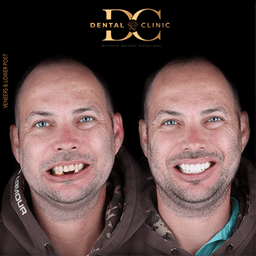 dental-clinic-cancun-before-and-after-all-on-4-roy-ryan-caso