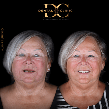 dental-clinic-cancun-before-and-after-all-on-4-susan-pitre
